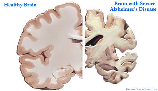 脳科学的に見たバイリンガル